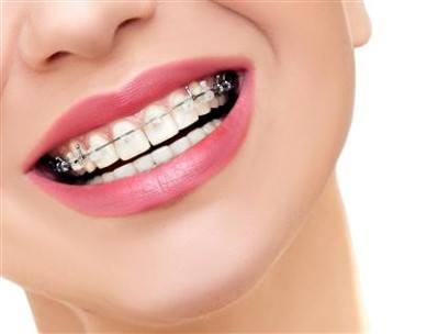 beautiful female smile with metal braces