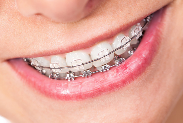 closeup smile with clear braces