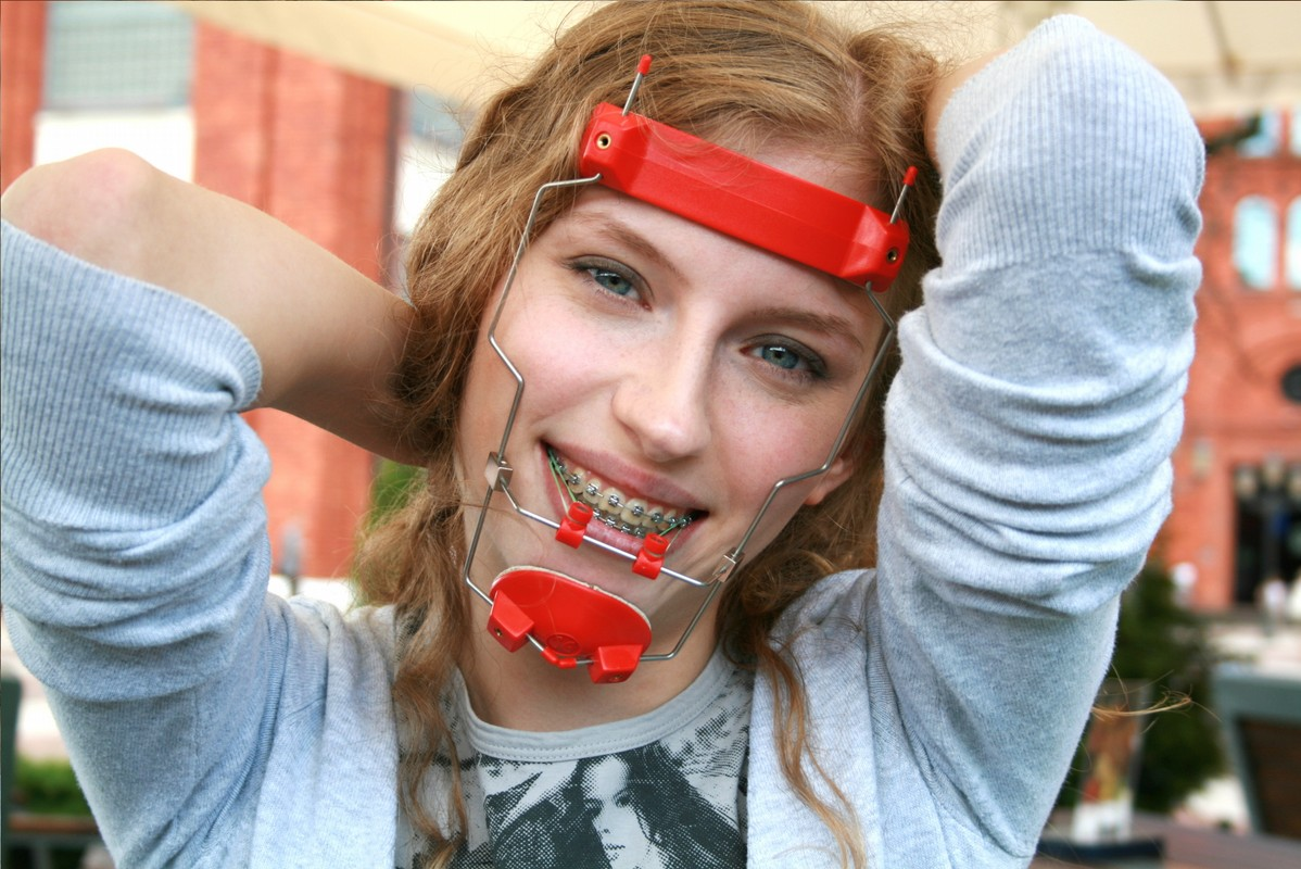 happy girl with braces and orthodontic headgear facemask