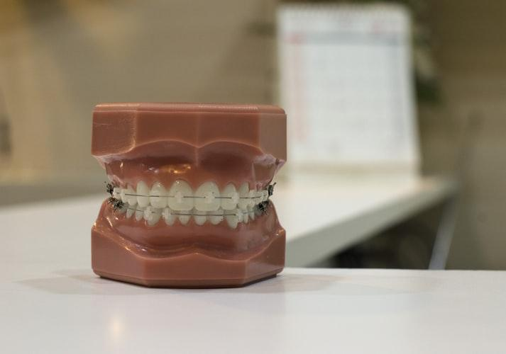 man's jaw model with braces
