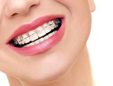 Beautiful Female Smile with Metal Braces on Teeth