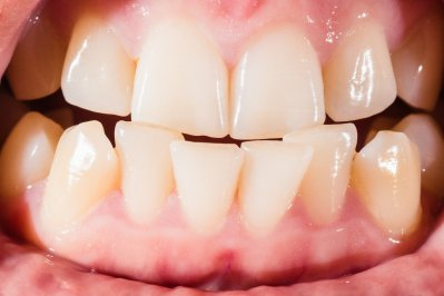 orthodontist recommend braces crooked teeth