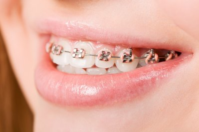 Braces for Jawbone Alignment