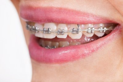 braces-installed-on-top-and-bottom-teeth