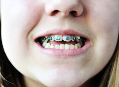 teenagers-before-starting-orthodontic-treatment